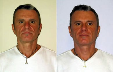 Happy Face Yoga Before & After Picture